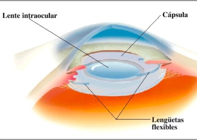 Lentes-intraoculares
