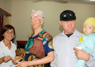 proyecto albinos